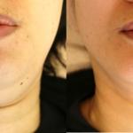 小顔治療 BNLSネオ&ウルトラセル<HIFU>